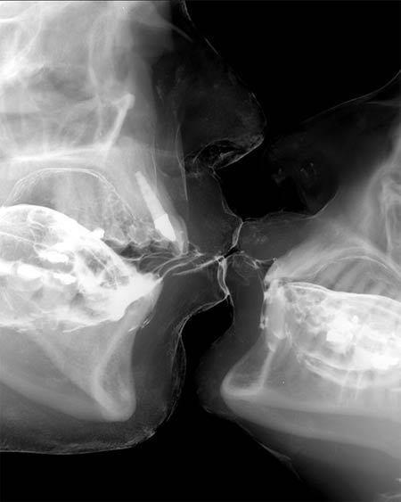 Beso radiografía